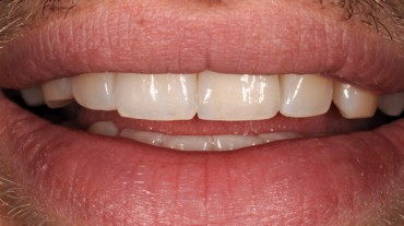 Ansichten-Implantate-Beispiel-1-Zirkonkrone-Implantat-Titanbasis-Zirkon-3