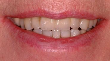 Ansichten-Implantate-Beispiel-2-MK-Bruecke-Creation-Classic-2