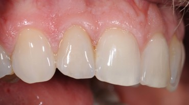 Leistungen-Veneers-1-Zahn-12
